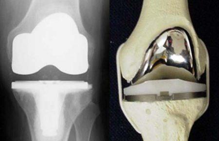 Операция по замене коленного сустава, обсуждение всех этапов