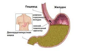 Боль в правом боку на уровне талии: причины и вероятные заболевания