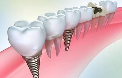 Стоматология ортопедическая – восстановление зубов