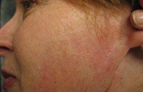 Аурикулотемпоральный синдром