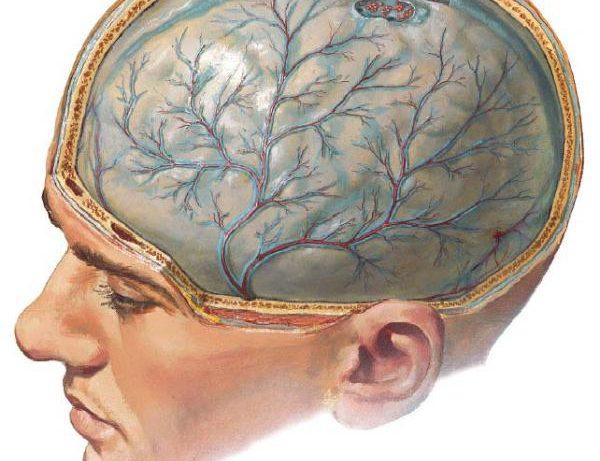 Хронические менингиты.
