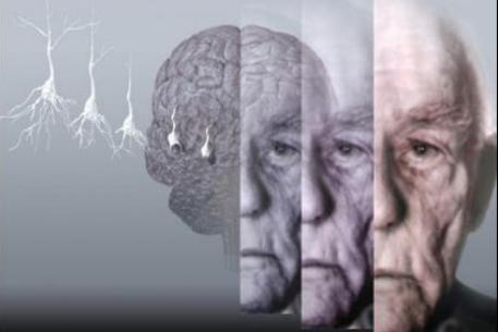 Простуда на губах повышает риск болезни Альцгеймера