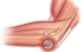 Бурсит локтевого и коленного сустава