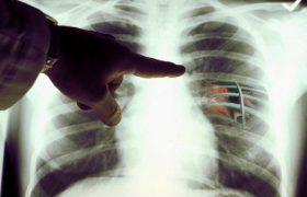 ТОП-5 необычных симптомов рака легких, о которых надо знать каждому