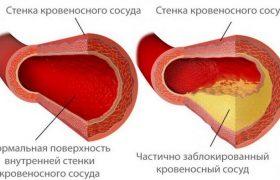 Проверенные народные способы очищения сосудов головного мозга