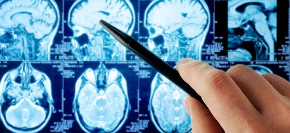 Что нужно знать о раке мозга