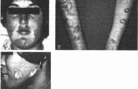 Невропатии при заболеваниях соединительной ткани и васкулитах
