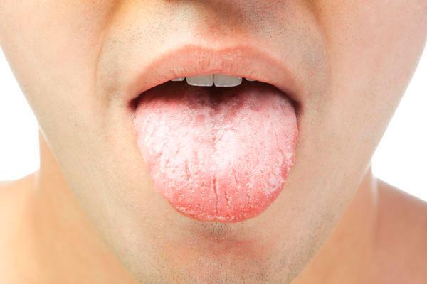 Налет на языке: опасность и причины возникновения