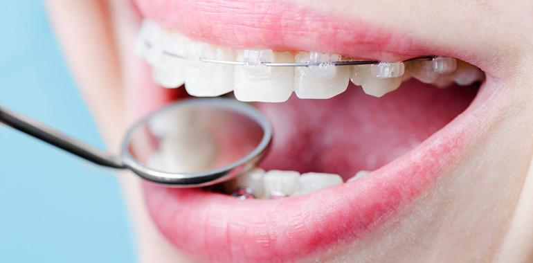 Брекеты — наиболее эффективный метод исправления зубных дефектов