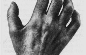 Невропатия срединного нерва