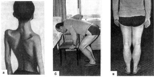 Мышечная дистрофия Эрба-Рота