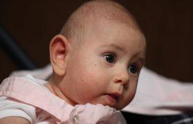 Микроцефалия у новорожденных детей
