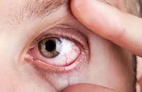 Что вызывает чувство давления в глазах?
