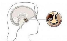 Симптомы апоплексии гипофиза