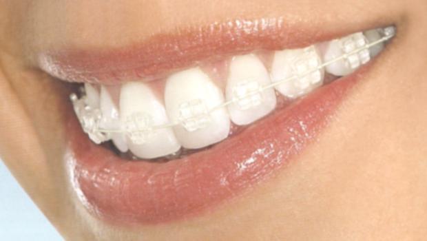 Брекеты — новая жизнь ваших зубов