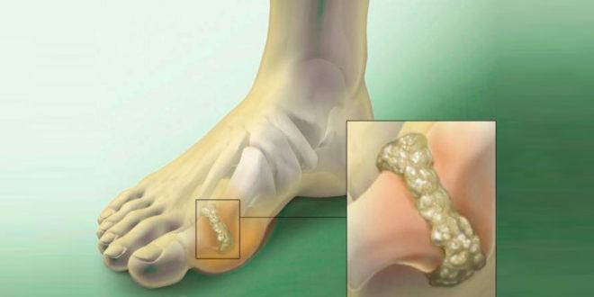 Острый подагрический артрит: особенности и лечение
