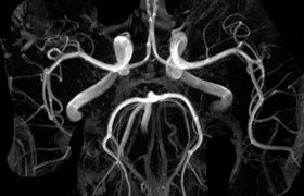 Лечение тромбоза мозга