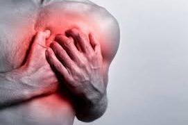 Лечение и прогноз грудного радикулита