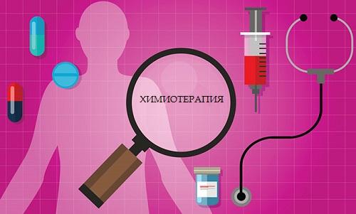 Расстройства нервной системы во время химиотерапии: как с ними бороться