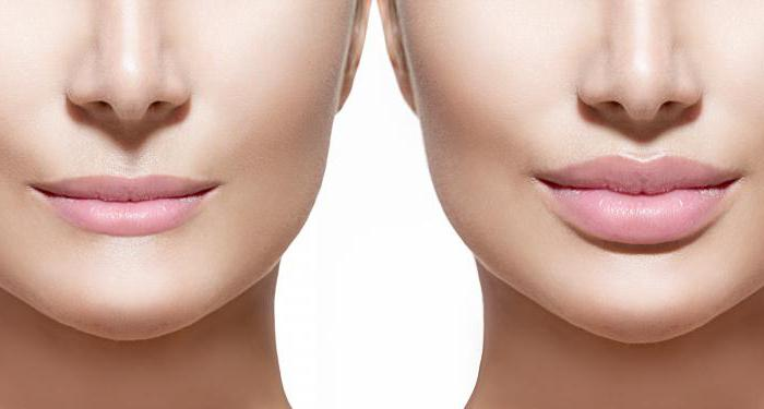 Увеличение объема и коррекция формы губ
