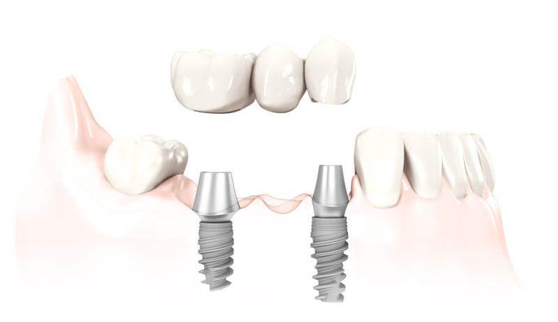 Протезирование зубов. Секреты косметической стоматологии