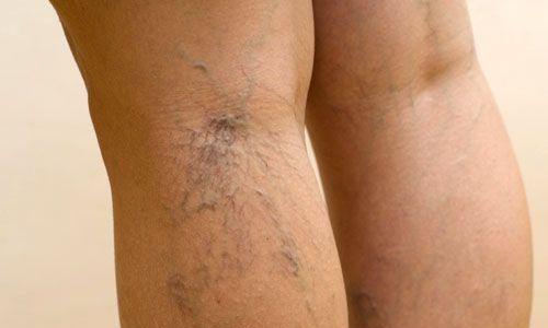 Симптомы варикоза: чувство распирания и тяжести в ногах
