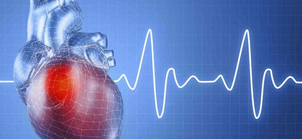 Мерцательная аритмия сердца в любом возрасте