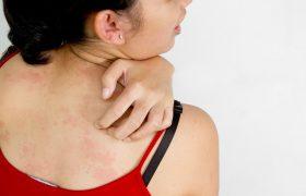 Крапивница: общая характеристика заболевания