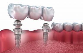 Имплантация зубов: всё, что необходимо знать