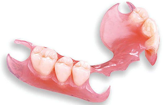 Протезирование зубов. Съемный частичный протез-помощь в стоматологии