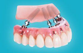 Протезирование all-on-4: современный подход к проблеме потери зубов