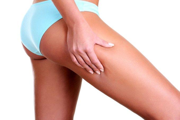 Варикозное расширение вен на ногах: почему появляется, как лечить?