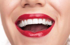 Красивая улыбка с помощью виниров?