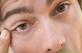 Нервный тик: причины и способы лечения