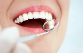 Имплантация зубов, что нужно знать?