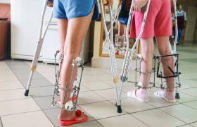 Как выпрямить ноги и увеличить рост: малотравматичные операции в Волгограде