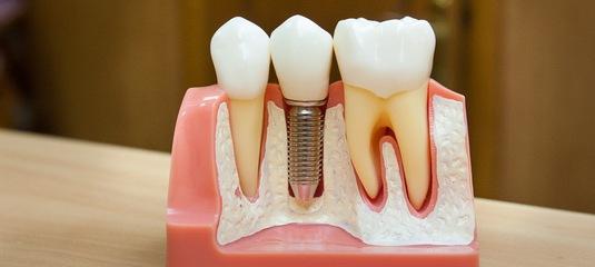 Протезирование зубов. Зубные имплантаты: что нужно знать, если вы правильный кандидат