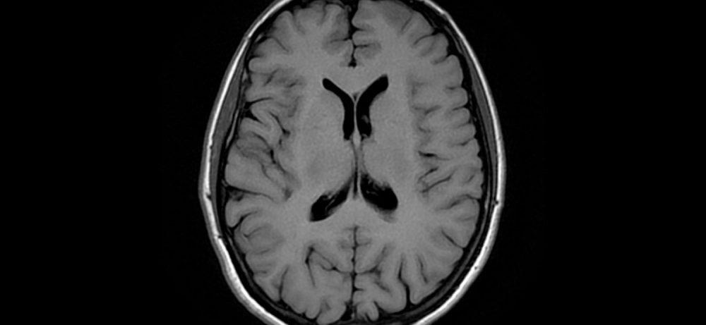 Стресс ухудшил память и уменьшил размер мозга у людей зрелого возраста