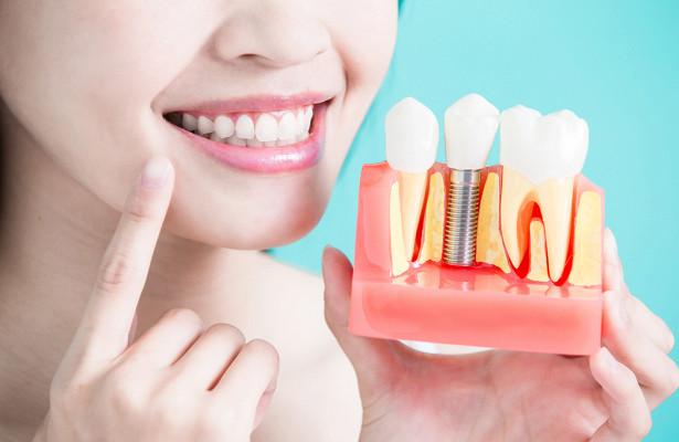 Зубные импланты: гарантия и сроки годности