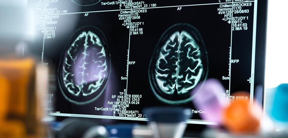 Что стресс делает с нашим мозгом