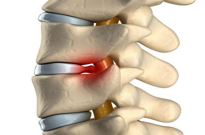 Лечение грыж позвоночника без операций аутогравитационной терапией