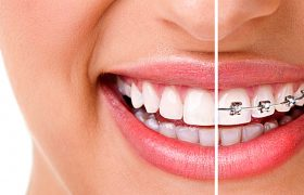 Стоматология. Ортодонтия.