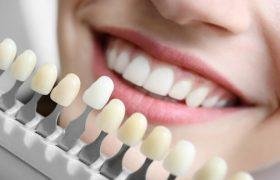 Стоматология. Косметическая стоматология становится очень популярной