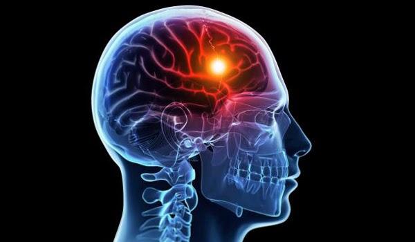 Лечение отдаленных последствий черепно-мозговой травмы