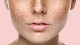 Удаление пигментных пятен на коже