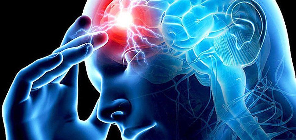 Причины, разновидности и признаки инсульта