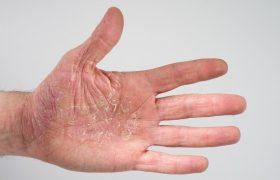 Атопический дерматит (нейродермит)