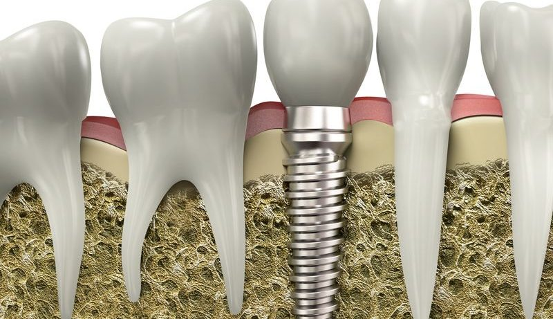 Протезирование зубов. Информация о зубных имплантатах
