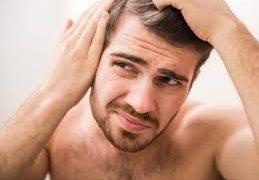 Выпадение волос у мужчин — причины и решение проблемы