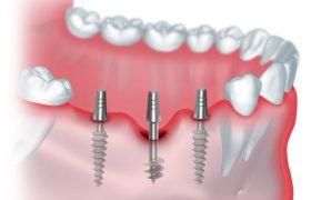 Импланты для базальной имплантации